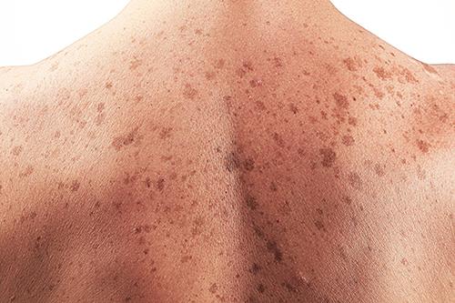 Dược sĩ khuyến cáo những đối tượng dễ bị  mắc ung thư da nhất