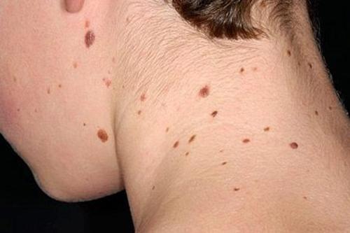 Gia đình từng có người bị ung thư da bạn cũng có thể mắc bệnh