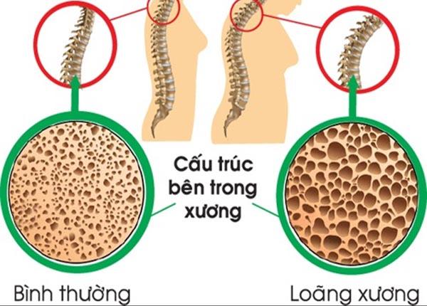 Loãng xương là một bệnh về xương khi các bộ phận của xương trở nên yếu và dễ bị gãy