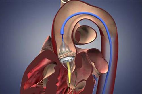 Tìm hiểu những vấn đề bệnh nhân phẫu thuật thay van tim