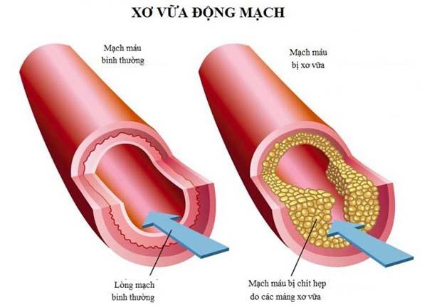 Xơ vữa động mạch là một tình trạng bệnh lý phổ biến trong dân số hiện nay