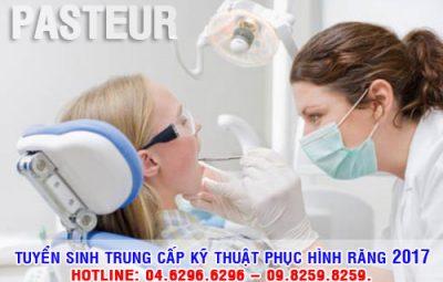Tuyển sinh Trung cấp Kỹ thuật phục hình răng xét tuyển học bạ THCS