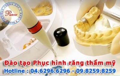dao-tao-phuc-hinh-rang-tham-my