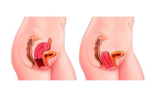Điều trị sa tử cung theo từng trường hợp nặng nhẹ khác nhau