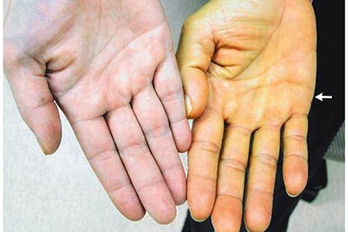 Dược sĩ Liên thông Cao đẳng Dược chỉ ra những nguyên nhân gây nên bệnh vàng da