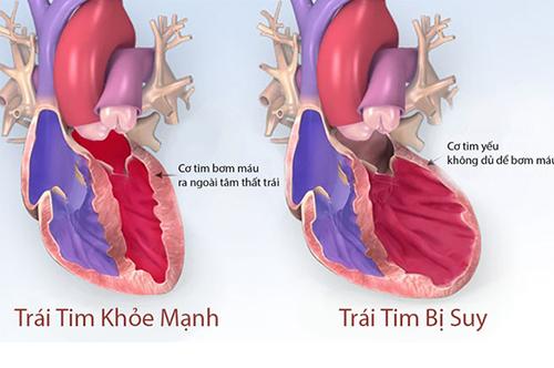 Mọi người có biết suy tim sung huyết là bệnh gì?